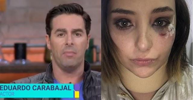 Actor argentino Televisa  que  violó, golpeó a Elisa Causedo, está libre