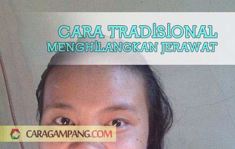 Cara Tradisional Menghilangkan Jerawat