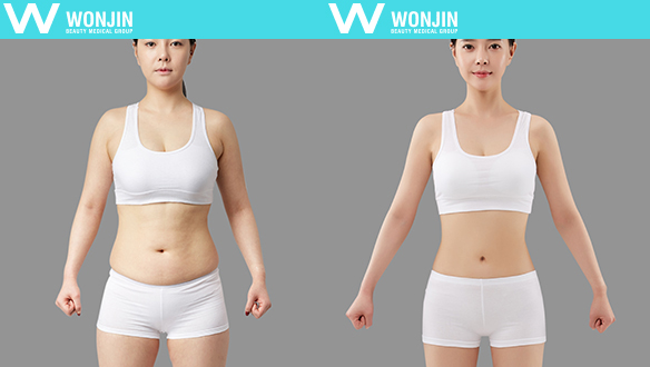 짱이뻐! - Before and After Photos Korean Body Contour