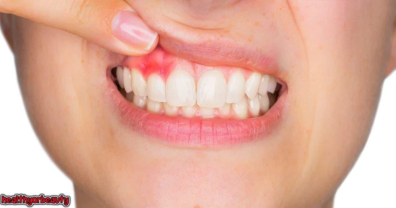 حقائق مذهلة في علاج خراج اللثة و خراج الاسنان وخراج الضرس