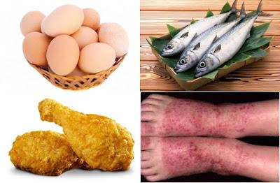 makanan yang dilarang eksim untuk dikonsumsi