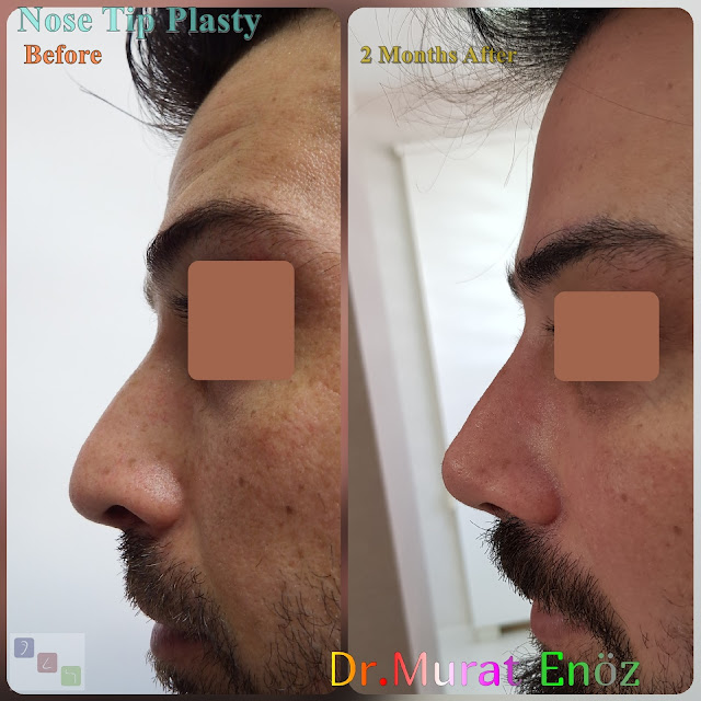 Before and 2 Months After Nose Tip Plasty in Men