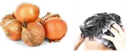 Manfaat bawang merah untuk rambut