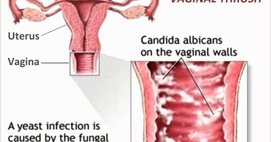 what is thrush in the vag