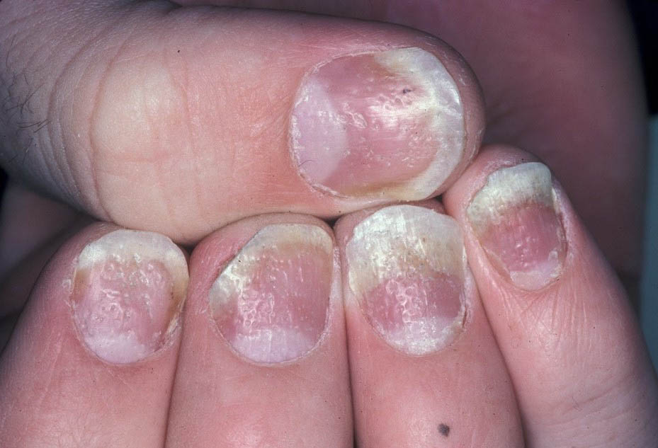 Psoriasis Natural Treatment BLOG: What Does Psoriasis Look ...