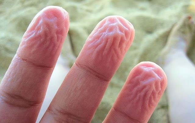 Menurut Peneliti Bagaimana Tangan mengkerut didalam Air