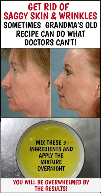 Grandma's Home Remedy To Get Rid Of Saggy Skin And Wrinkles