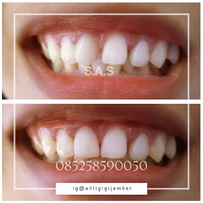 Veneer gigi depan miring di ahli gigi pati