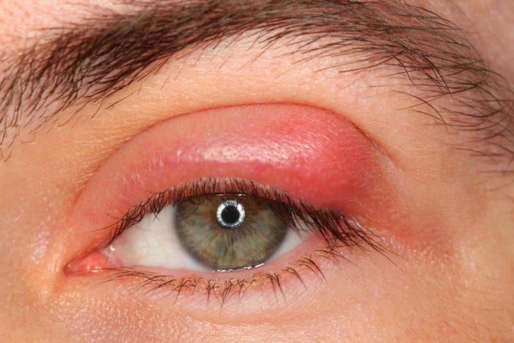 Obat Kista Di Kelopak Mata Tradisional