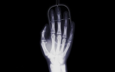 X-ray was discovered by accident