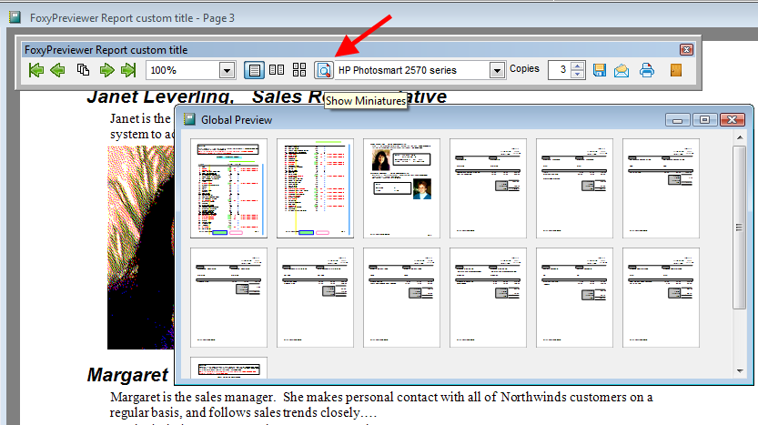 FoxyPreviewer allows you to see minimized versions of the report pages