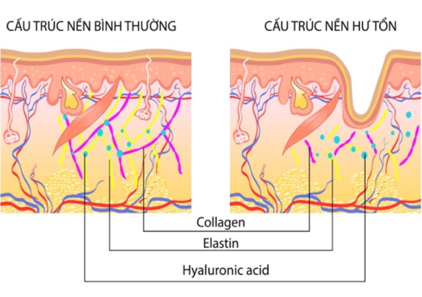 Hyaluronic Acid là cầu nối giữa Elastin và Collagen, đóng vai trò chính trong nuôi dưỡng Collagen