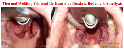 Tonsillectomy in Turkey - Tonsillectomy in Istanbul - Tonsillectomy operation in İstanbul - Tonsillectomy operation in Turkey - Tonsillectomy cost in Istanbul - Tonsillectomy cost in Turkey - Thermal welding tonsillectomy in Turkey - Thermal welding tonsillectomy in Istanbul - Thermal welding tonsillectomy video in Turkey - Thermal welding tonsillectomy video in Istanbul - Tonsillectomy in Istanbul, Turkey - Tonsil removal surgery in İstanbul - Tonsil surgery in İstanbul