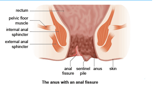 That anal disease fissure remarkable, very