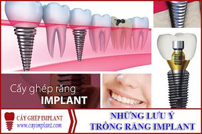 những lưu ý trước khi trồng răng implant -1