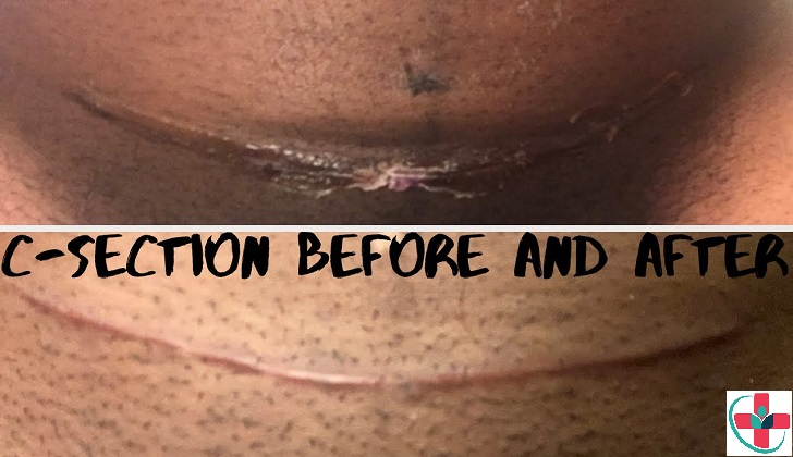 Healing after a cesarean (c-section)