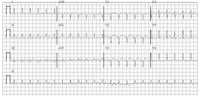 EKG of atrial Flutter