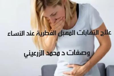 علاج التهابات المهبل الفطرية عند النساء