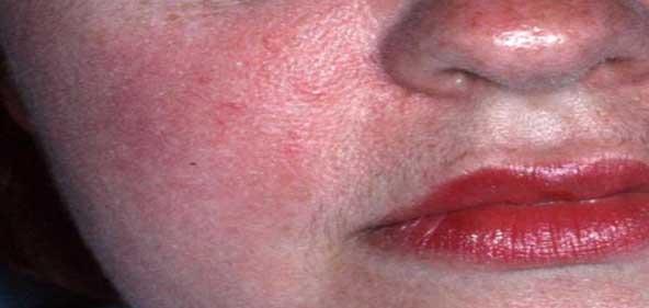 Erythematotolangectatic Rosacea