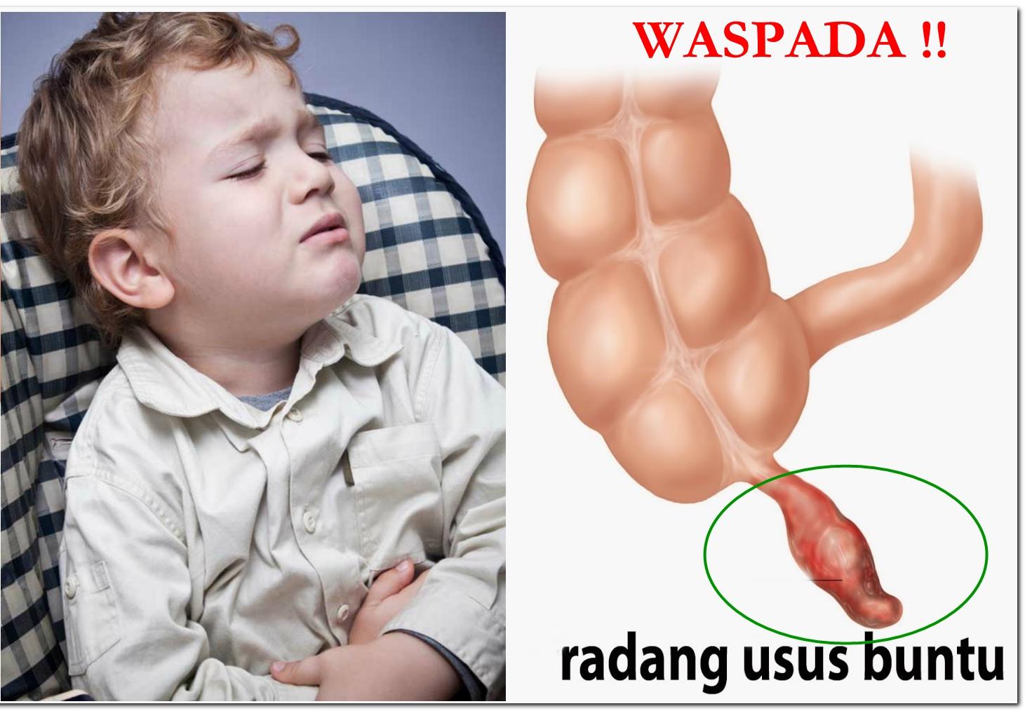 Obat Untuk Anak Infeksi Usus Buntu