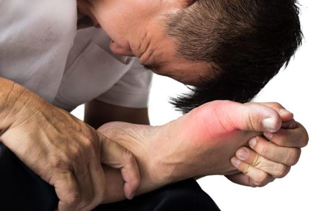 Hal yang Perlu Diperhatikan Bagi Penderita Rematik Asam Urat