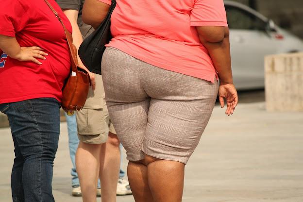 ऐसा मोटापा जान लेवा है Such obesity is life