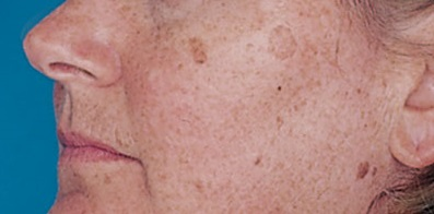 brown spots on the skin
