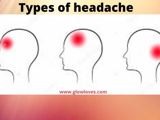Different types of headache