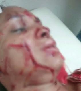 Hombre le corta el rostro con un gillete  a su es exposa