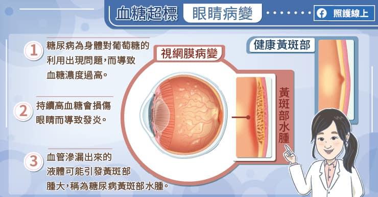 血糖超標,眼睛病變