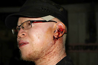 ISAAC MWAURA escapes death by a whisker after his car was sprayed with bullets(PHOTOs)