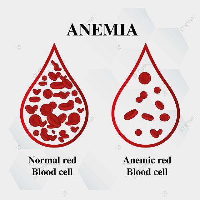 """كيف تعرف أنك مصاب بالأنيميا """"فقر دم"""" نقص الحديد الأسباب والأعراض والعلاج"""
