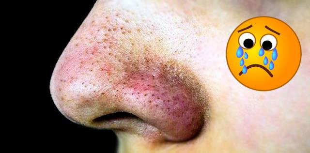 طريقة ازالة البقع السودا من الوجه - ماسك جوز الطيب لازالة البثور السوداء - فوائد جوز الطيب