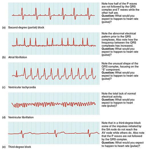 Tindakan Keperawatan Pada Aritmia Jantung