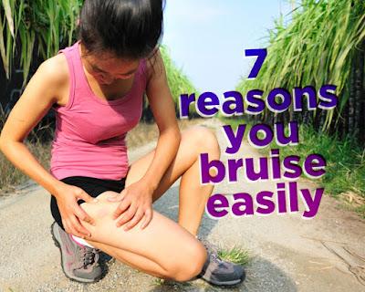 injured easily