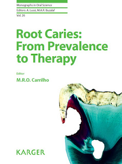 Root Caries, From Prevalence to Therapy