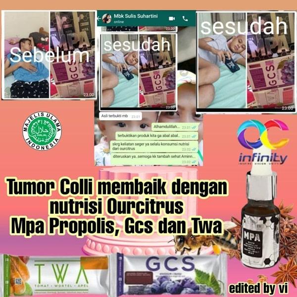 tumor colli membaik dengan konsumsi propolis mpa, twa voira dan gcs revivar ourcitrus