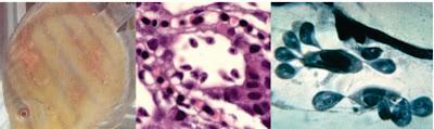 Penyakit Protozoa : Ichthyobodo necator