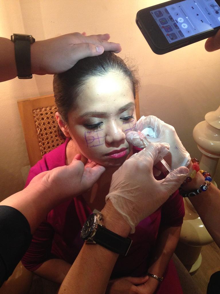 dermal fillers, Galderma Philippines, Restylane, restylane cost