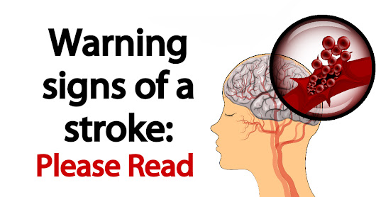 Warning signs of a stroke - PLEASE READ