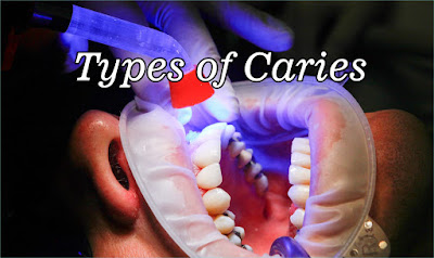 Types of Caries