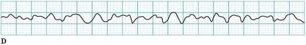 Ventricular fibrillation ECG