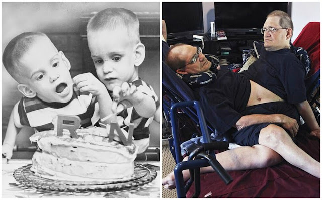 В США ушли из жизни самые старые сиамские близнецы в мире