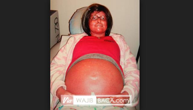 Masya Allah! Seusai Bersalin, Dokter Kaget Lihat Jabang Bayi Wanita Berkulit Merah Ini