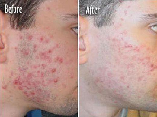 limpieza de cutis: Tratamiento para el acne