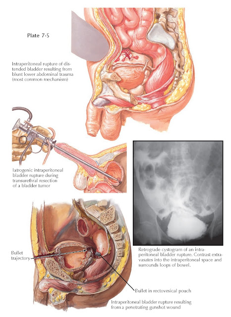 INTRAPERITONEAL BLADDER RUPTURES