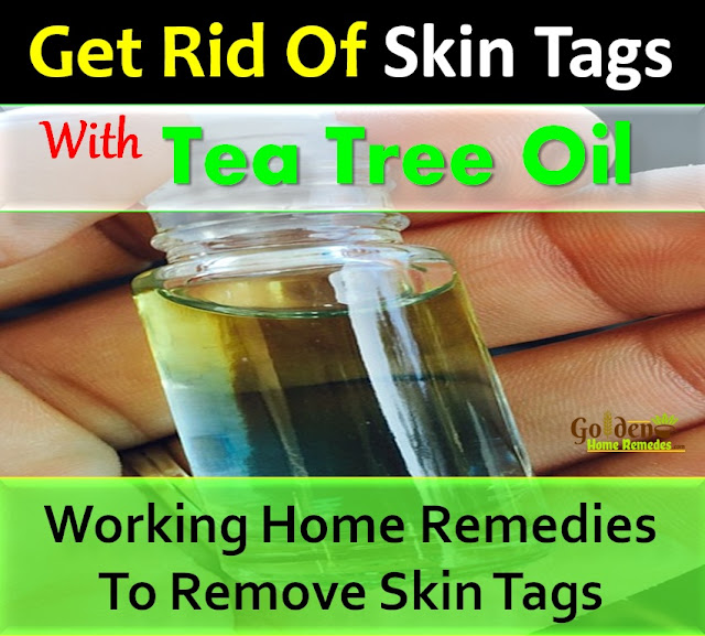 Tea Tree Oil For Skin Tags, Tea Tree Oil and Skin Tags, How To Remove Skin Tags With Tea Tree Oil, Remove Skin Tags, How To Get Rid Of Skin Tags, Home Remedies For Skin Tags, Skin Tags Treatment, Skin Tags Home Remedies, How To Treat Skin Tags, How To Cure Skin Tags, Skin Tags Remedies, Remedies For Skin Tags, Cure Skin Tags, Treatment For Skin Tags, Best Skin Tags Treatment, Skin Tags Relief, How To Get Relief From Skin Tags, Relief From Skin Tags, How To Get Rid Of Skin Tags Fast,