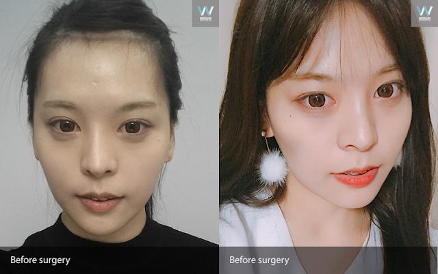 Korean Plastic surgeryReview