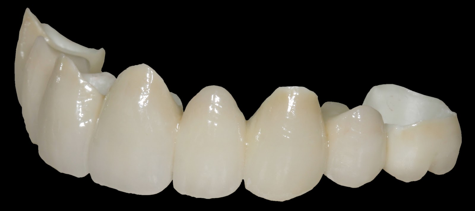 News Room - ROE Dental Laboratory: Expanded Uses of Zirconia