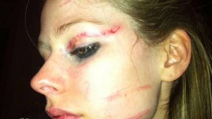 Le dan una paliza a Avril Lavigne: recordando el incidente de 2011